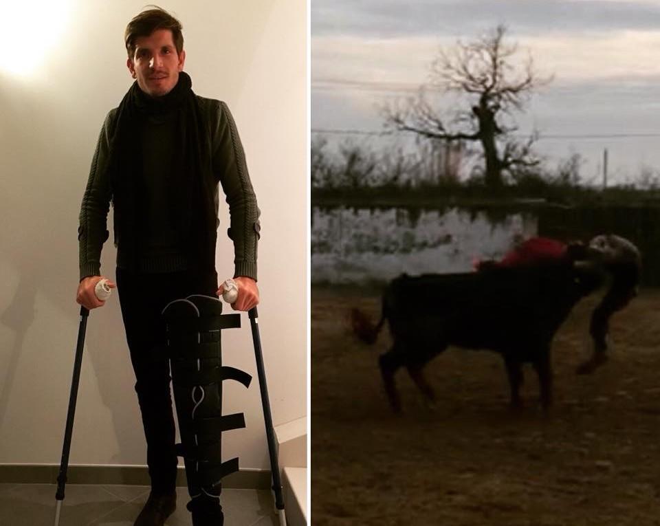 Maxime Solera, fracture au niveau du genou suite à un accrochage survenu au campo la semaine dernière