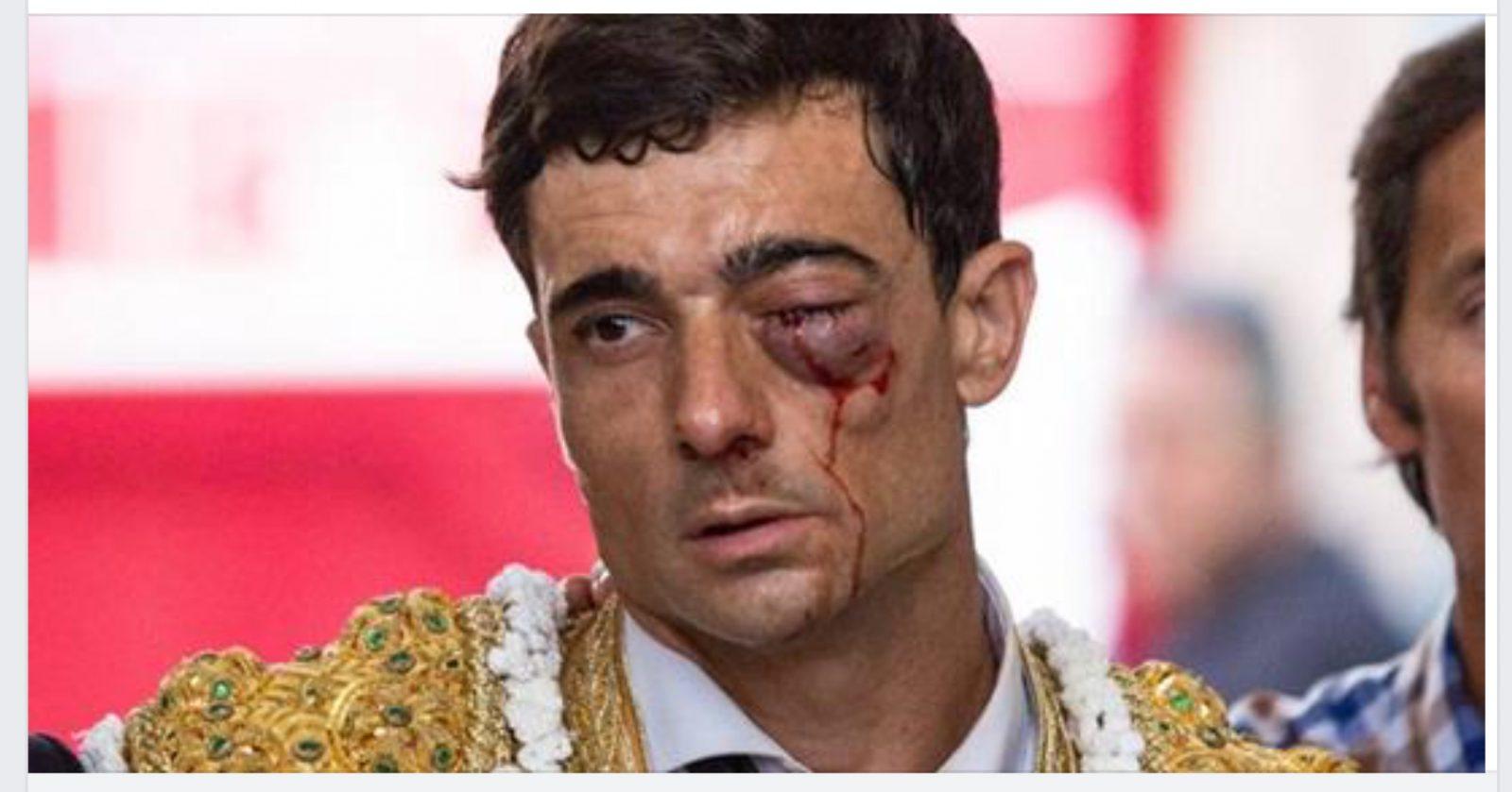 BLESSURE // PACO UREÑA sauve son oeil, mais il ne récupérera pas la vision