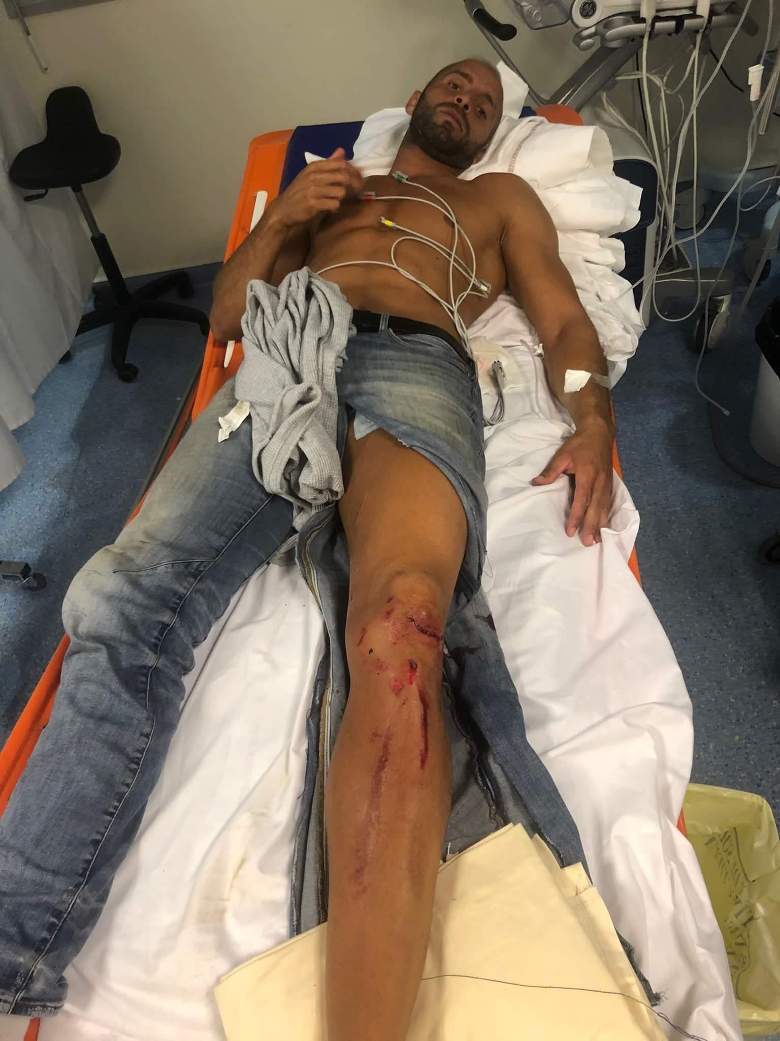 INFO // Le raseteur Sofiane RASSIR victime d'un accident de la route